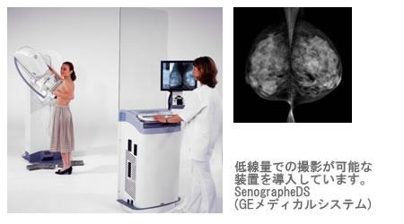 乳房X線撮影(マンモグラフィ)