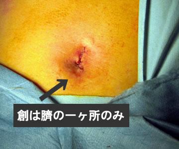 単孔式腹腔鏡下胆嚢摘出術 ヘルニアの外科 これまで、鼠径(そけい)ヘルニアから腹壁瘢痕ヘルニアま