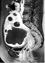 UAE 1ヵ月後造影MRI
