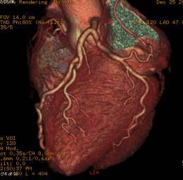 冠動脈CT画像