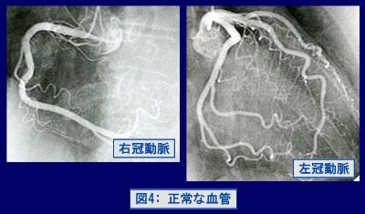 図4:正常な血管