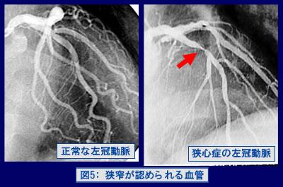 図5:狭窄が認められる血管