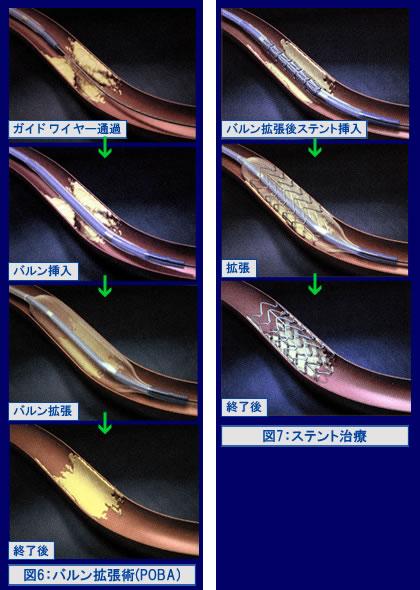 図6:バルン拡張術(POBA)と図7:ステント治療
