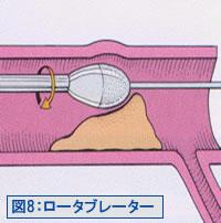 図8:ロータブレータ