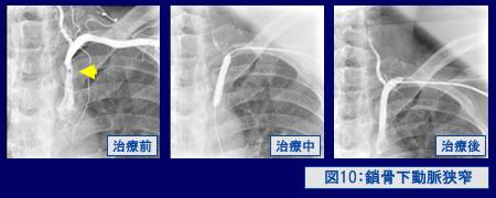 図10:鎖骨下動脈狭窄