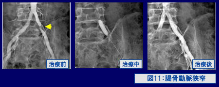 図11:腸骨動脈狭窄