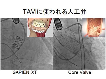 TAVIに使われる人工弁
