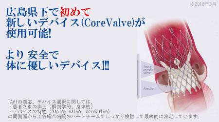 土谷総合病院は広島県下で初めて新しいデバイス(CoreValve)が使用可能になりました